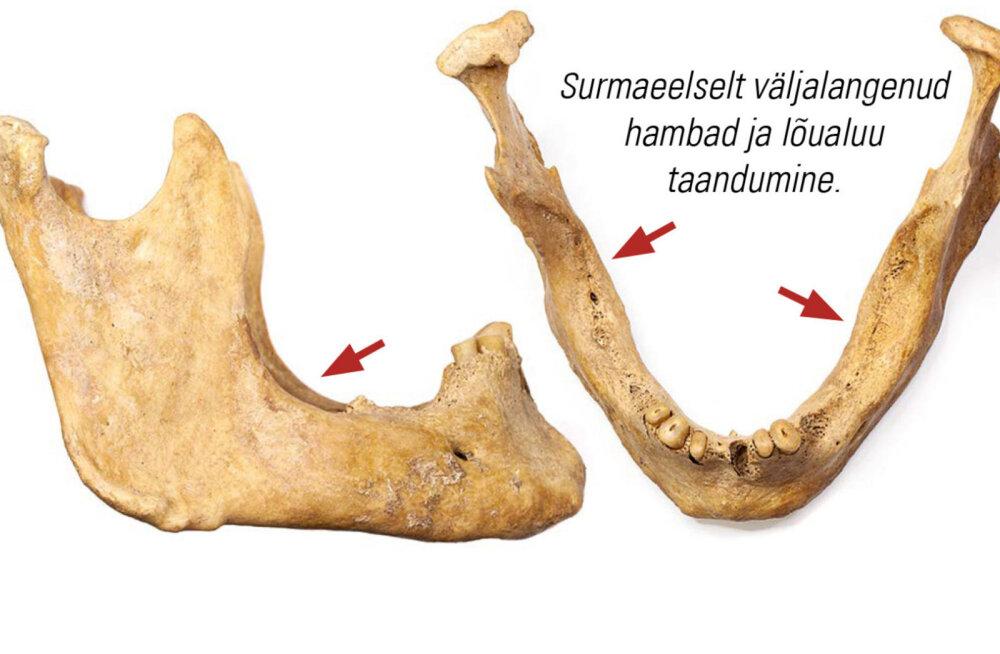 Mida räägivad arheoloogilised leiud keskaegsete tartlaste suuhügieenist?