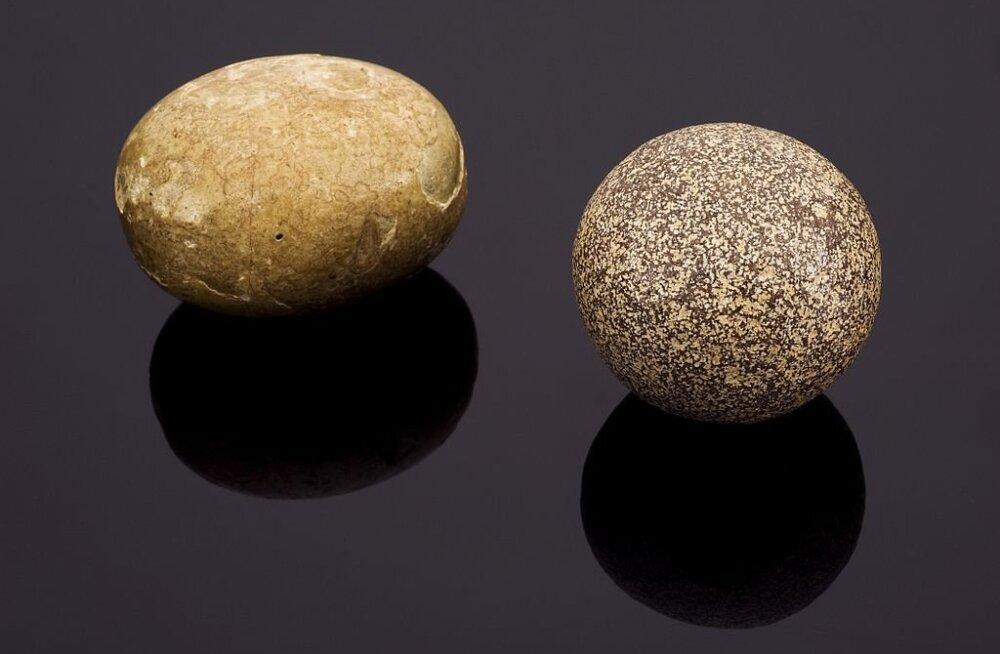 Nelja sorti kivid, mida inimkehast leida võib