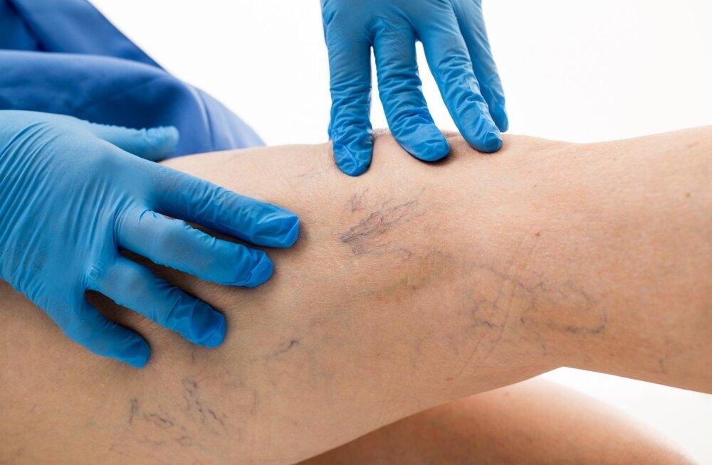 Kõige sagedamini esinevad veenihaigused jalal on veenilaiendid, mis on eelkõige kosmeetiline probleem.