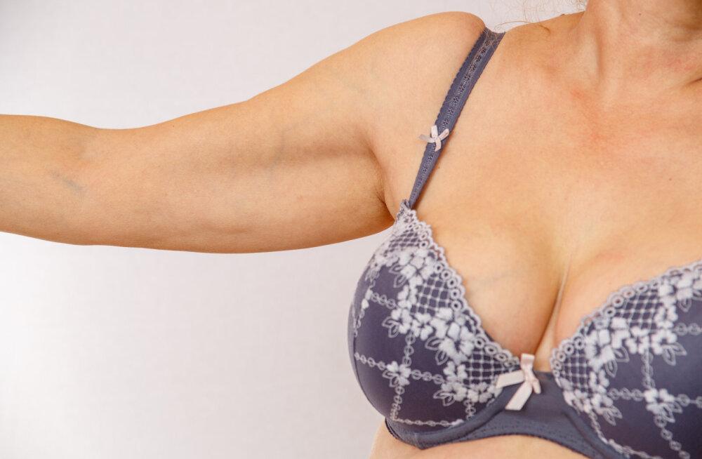 7 toimivat nõksu, kuidas saada peale kaalulangust rinnad taas pringiks ja kauniks