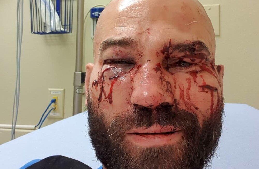 Artjom Lobov pärast võitlust Jason Knightiga.