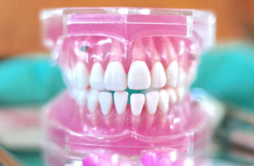 5 müüti ehk mida sa senimaani hambaid hooldades oled valesti teinud?