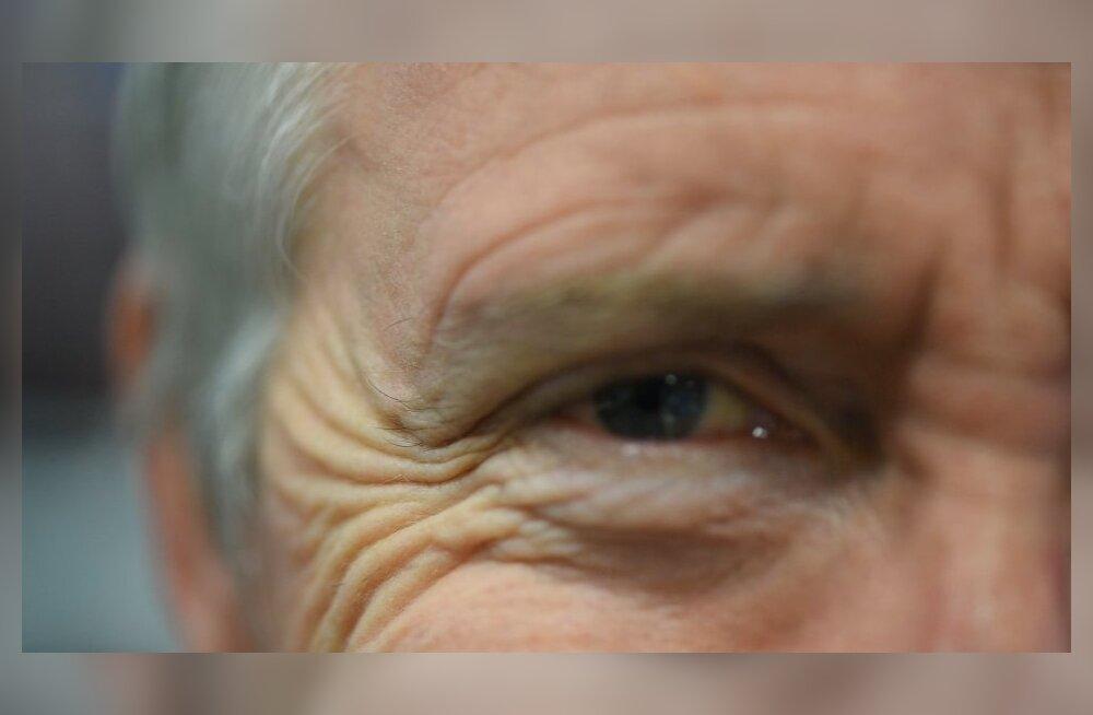 Igavese nooruse saladus? Teadlased leidsid võimaluse naha vananemise takistamiseks