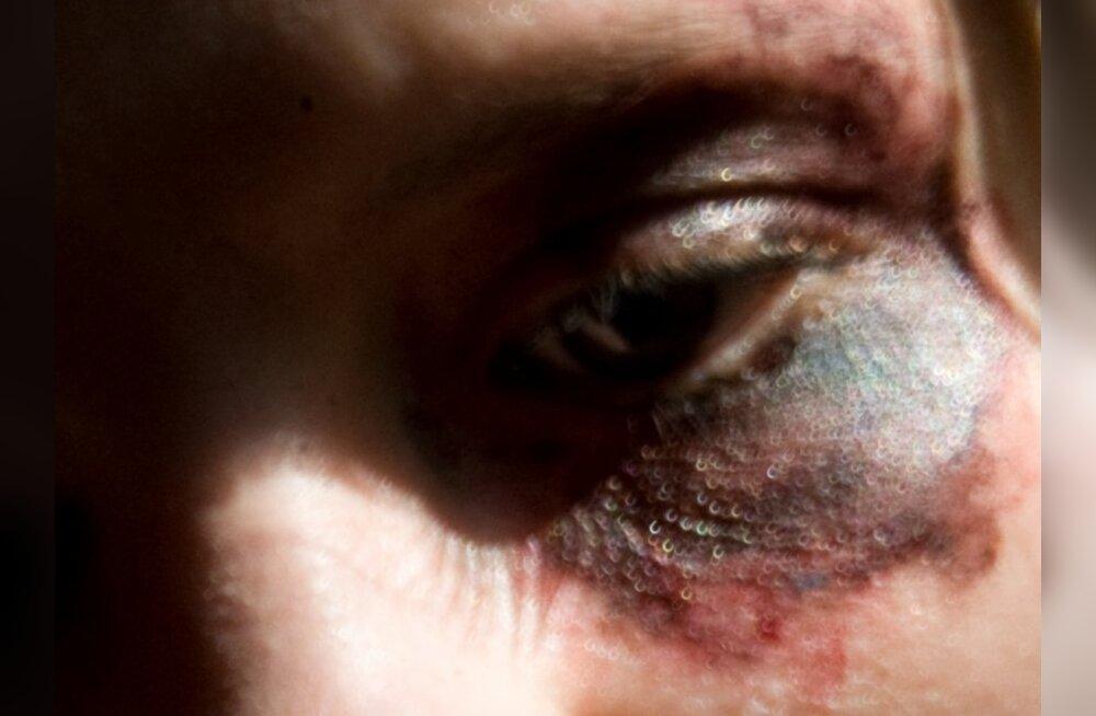 Tööandja vallandas sinise silmaga tööle tulnud naise