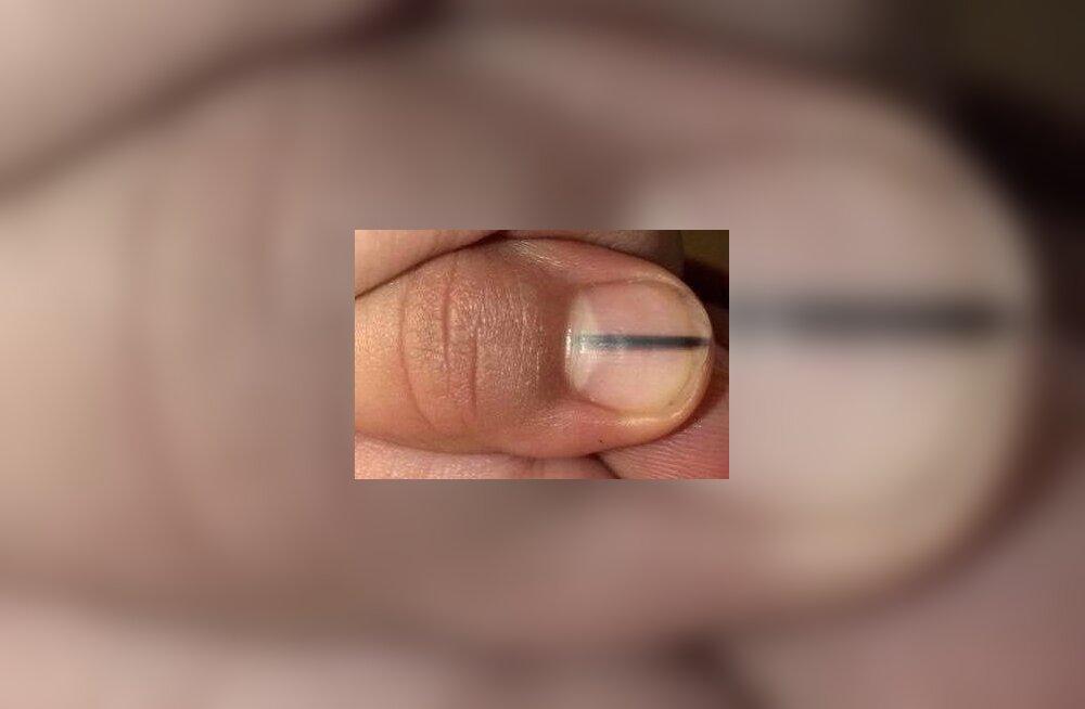 Ettevaatust! Küünte geellakkimise tagajärjeks võib olla ohtlik küünevähk