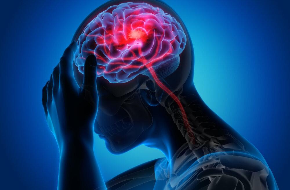 Professor insuldist: iga ravita jäänud tunniga vananeb aju enam kui kolm aastat