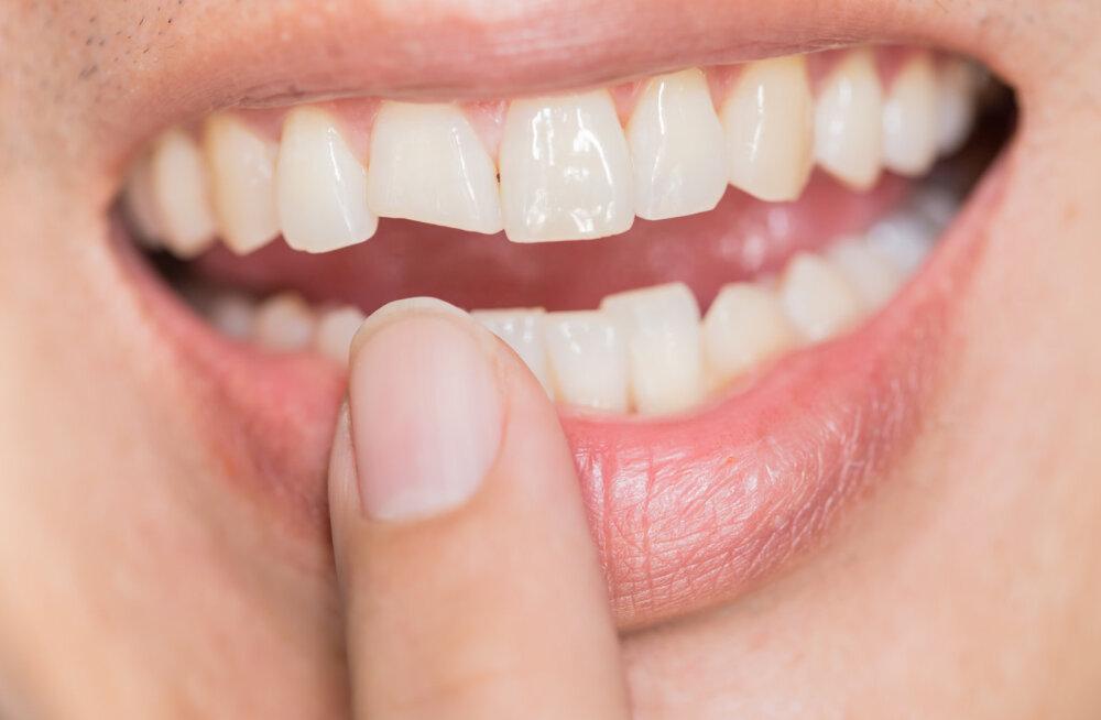 MURRAME MÜÜTE   Need on kuus kõlakat hammaste ja suutervise kohta, mis tegelikult paika ei pea