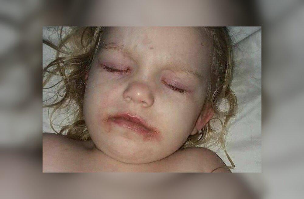 FOTOD | Kui ohutud lastele mõeldud meigitooted tegelikult on? Pisikese tüdruku vanemad jagasid hirmuäratavaid pilte