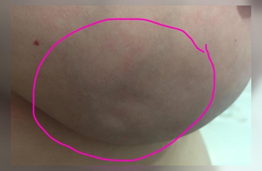 Julge naise postitus Facebookis: hoiatav foto imeväikesest märgist, mis võib rinnavähile viidata