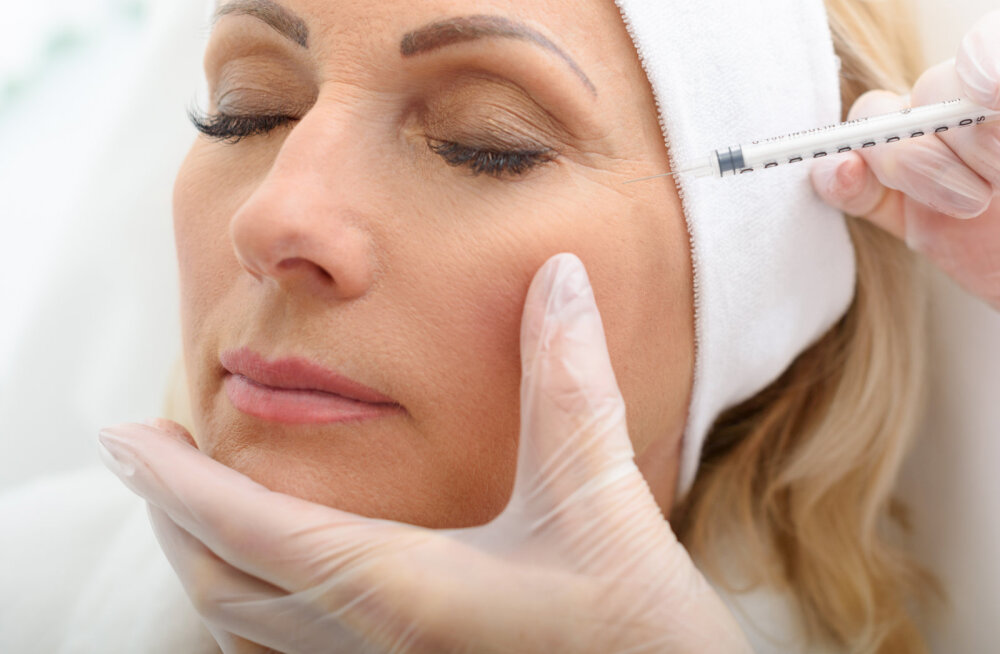 Botox ja täitesüstid — mis vahe neil on ja kas ka sina võiksid välimuse kohendamiseks nende peale mõelda?