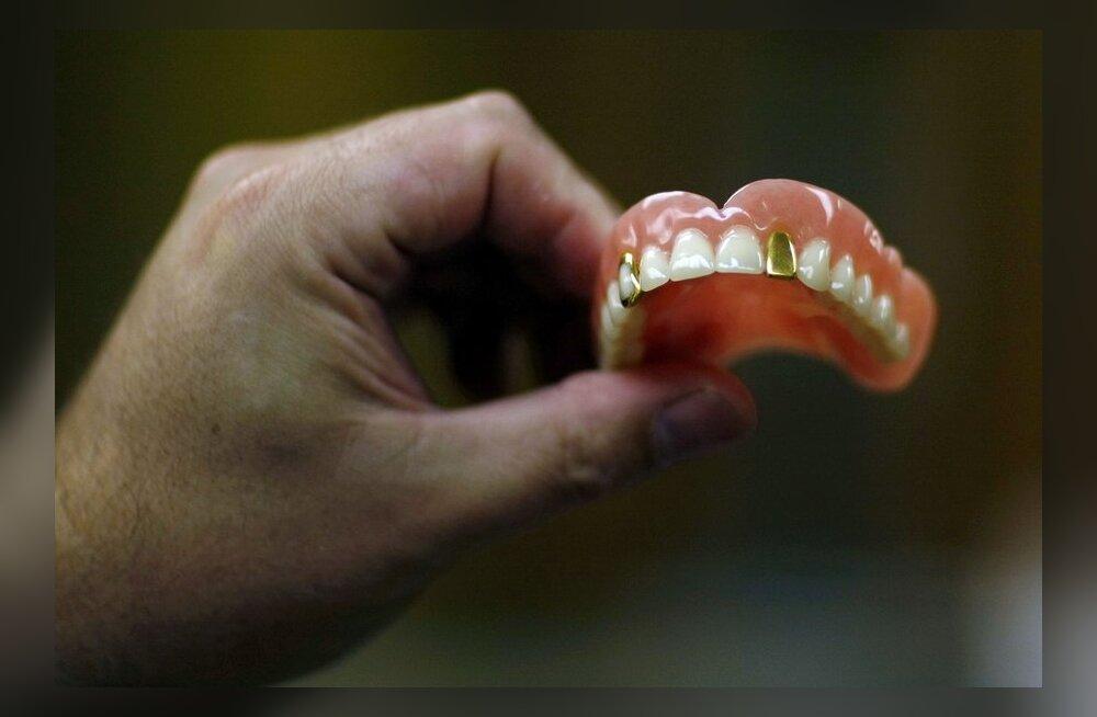 Kindel viis hammastest ilma jääda: pestes hambaid pärast happeliste söökide-jookide tarbimist