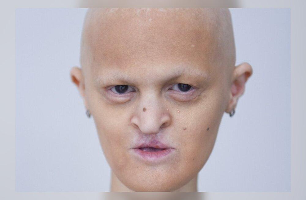 FOTOD | Need on kõige eriskummalisema välimusega modellid maailmas