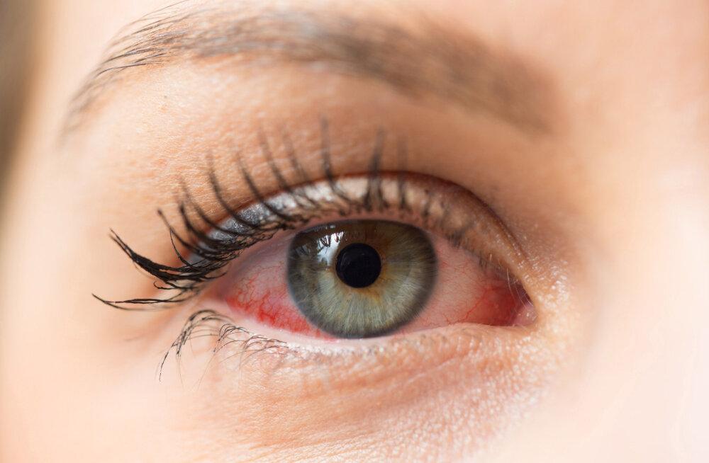 Silmad on kuivad ja väsinud ning kuiv kontoriõhk teeb asja ainult hullemaks? Proviisor jagab nõuandeid olukorra leevendamiseks