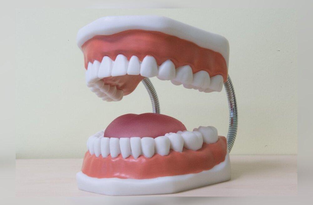 Mis muredega pöördusid eestlased möödunud aastal hambaarsti juurde kõige sagedamini?