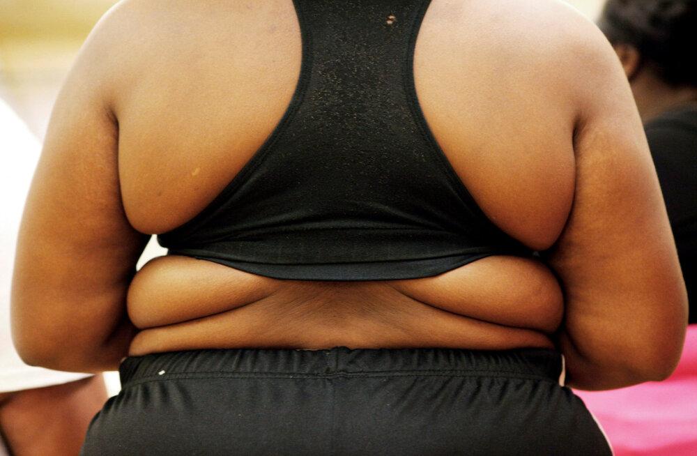 """Naine tunnistab üles: mul pole ühtegi paksu sõbrannat, sest mulle ei meeldi """"paksukesed"""""""