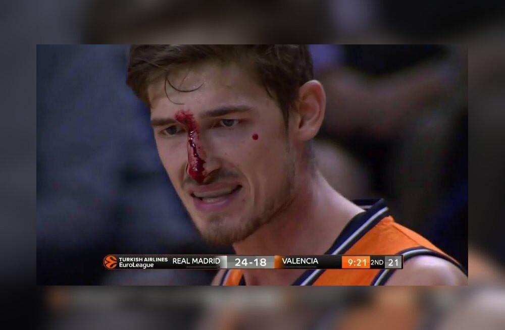VIDEO   Luka Dončić virutas vastasele vastu nägemist ning saadeti väljakult minema