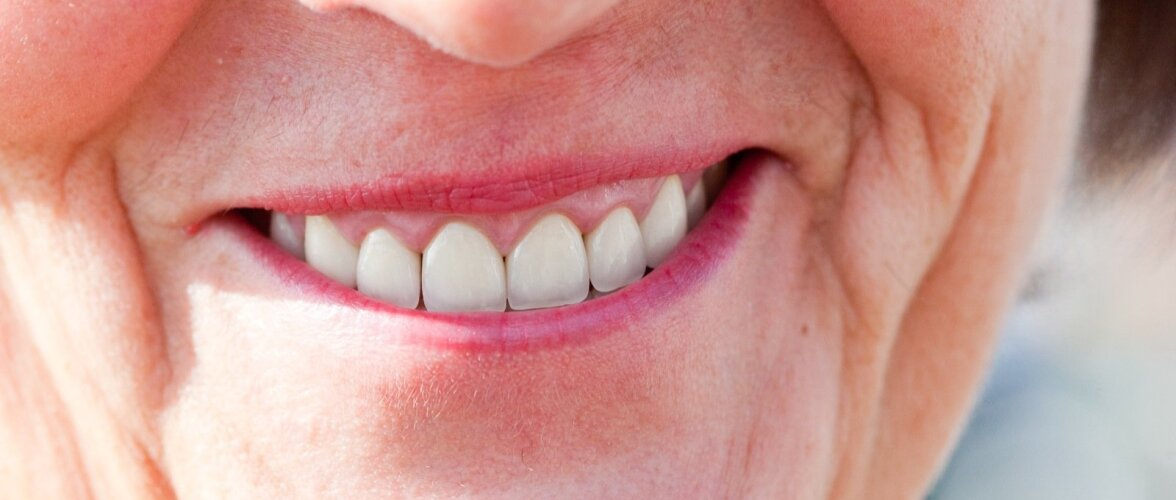 Puuduvaid hambaid aitavad asendada proteesid, aga millised?