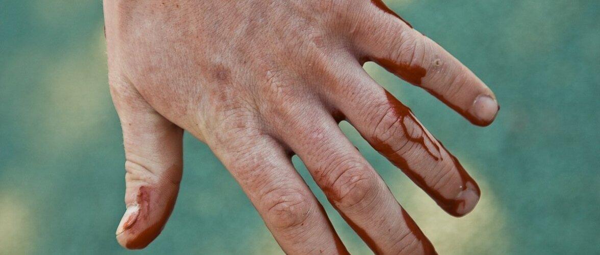 Millist traumat tohterdada ise ja millise korral kutsuda kiirabi?