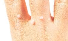 ETTEVAATUST! Veekeskustes levivad erinevad haigused
