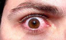 Kümme pea märkamatut märki, et sul võib mingi diagnoosimata haigus olla