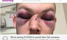 FOTO: Võigas vigastus: kriketipall murdis amatöörmängija näos 15 luud