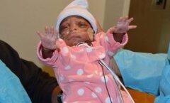 VIDEO imelapsest: üks läbi aegade väikseima sünnikaaluga beebi on hoolega kosuma asunud