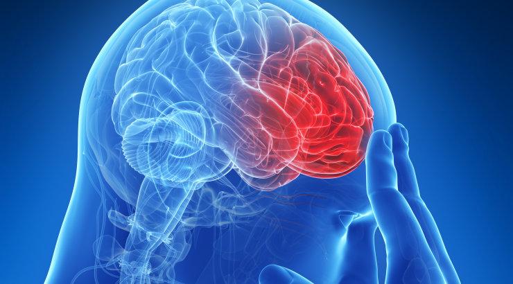 aa7fc54fd5f Insuldi puhul loeb ainult kiirus! Neuroloog selgitab, millised on suurimad  riskitegurid ja kuidas avalduvad