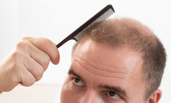 Apteeker selgitab: kuidas ja millega juuste hõrenemise vastu saaks?