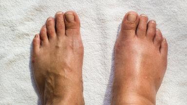 Jalad kuumusest täiesti paistes? Teeme selgeks, kuidas olukorda leevendada