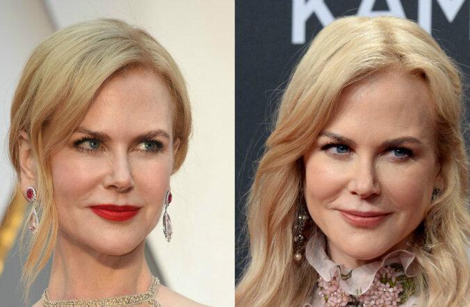 FOTOD: Mis küll juhtus? Nicole Kidmani nägu läbis vaid nädalaga totaalse muutumise!