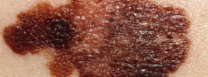 Mida heledam nahk, seda rohkem tuleb end päikese eest kaitsta