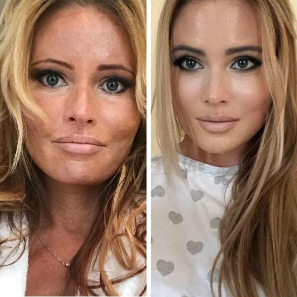 дана борисова до и после похудения фото