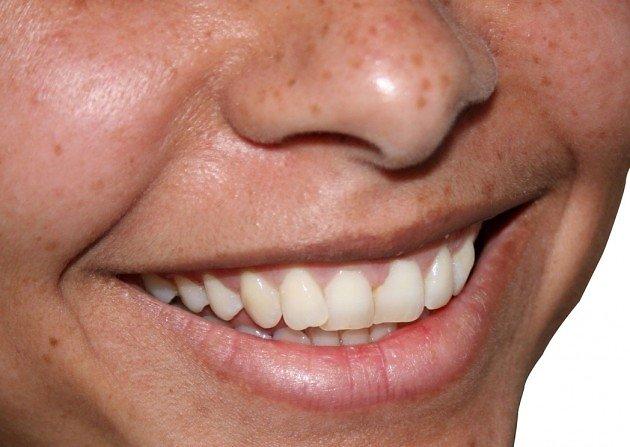 hammaste laservalgendamine