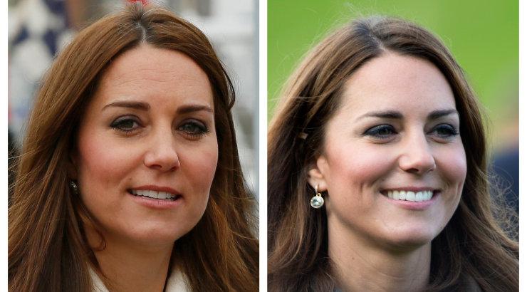 Hertsoginna Kate Middleton segati koledasse skandaali: ilukliinik väidab, et kuninglik on end siit ja sealt kohendada lasknud